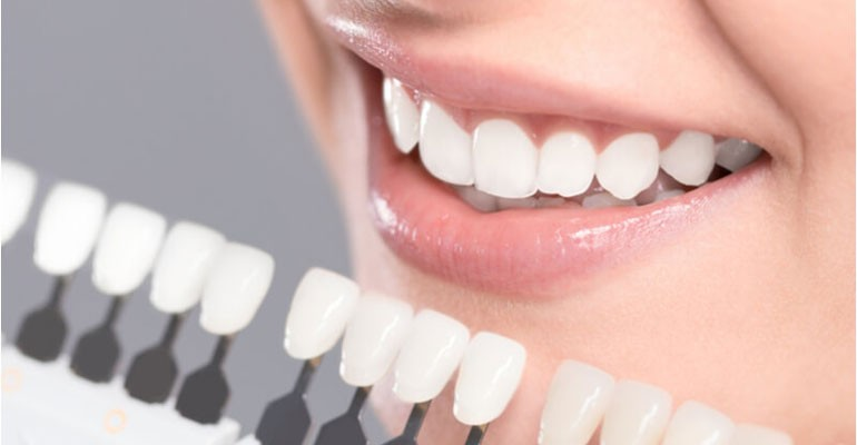 How To Get A Beautiful Smile With Dental Veneers - Https://www.westondental.ca/blog/how-to-get-a-beautiful-smile-with-dental-veneers/